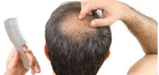 Baldness home remedies