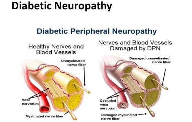 Ebook form download pathophysiology diabetic diagram neuropathy